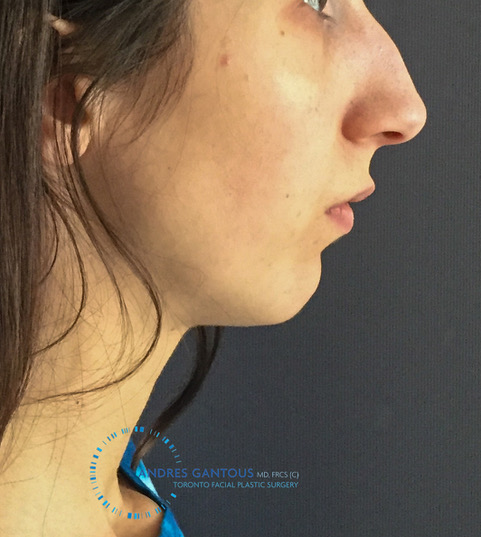 Toronto chin implant before right profile view